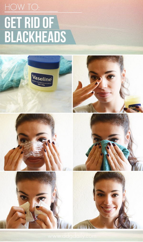 1 Get Rid of Blackheads with Vaseline and Clear Plastic