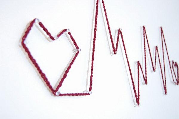 5  Heart Monitor Wall Art